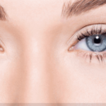 5 Surgery Recovery Tips for Eye lift Surgery in Atlanta